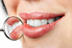 Perla-en-el-diente